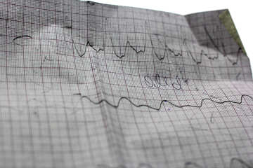 Decodifica cardiogramma №19875
