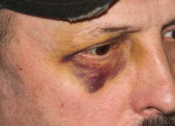 Bruise  and  eye №8621