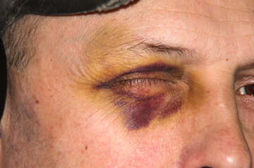 Bruise  near  eye №8620